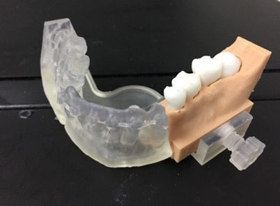 3D printed physical model-mandible base with replaceable cartridge containing the impacted tooth.